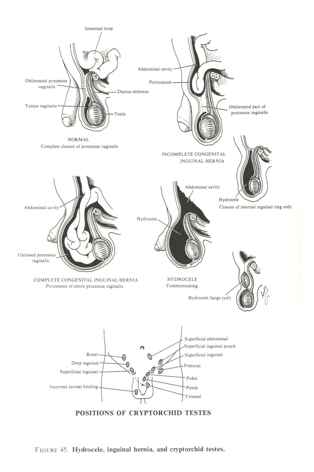 genital malformations the male: image #2