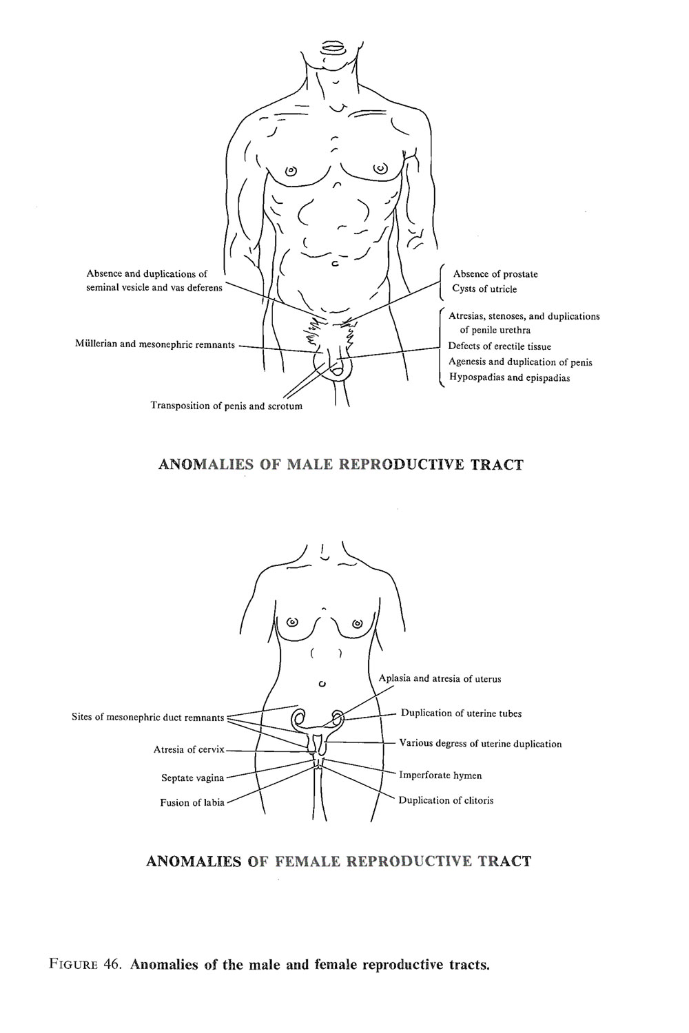 genital malformations the male: image #3
