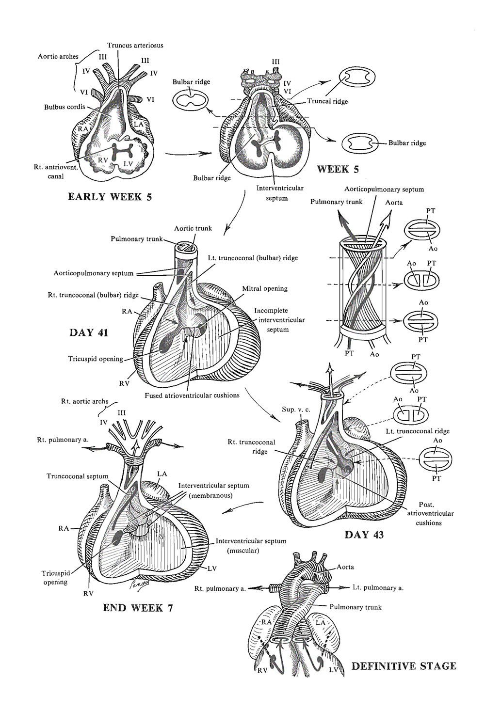 Chapter 120 Septation Of Ventricles Truncus Arteriosus And Conus
