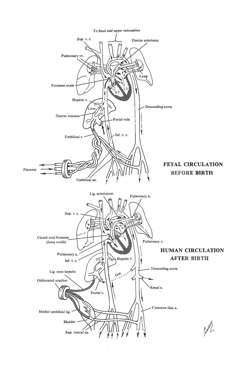the circulatory system  before and after birth: image #1