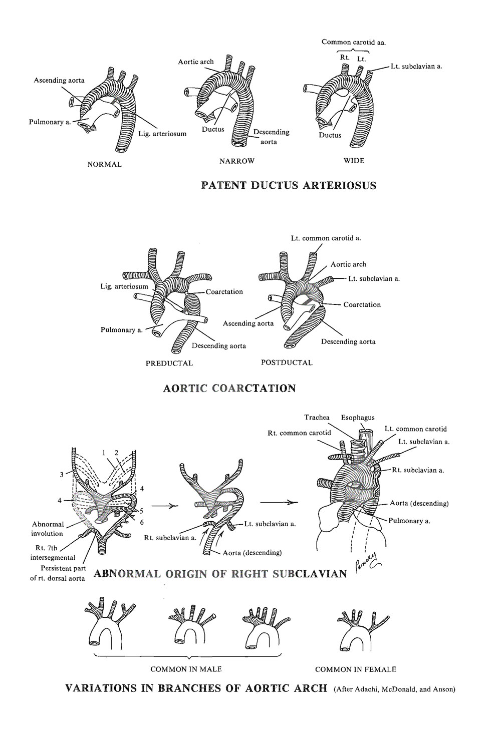 malformations of the  cardiovascular system: image #1