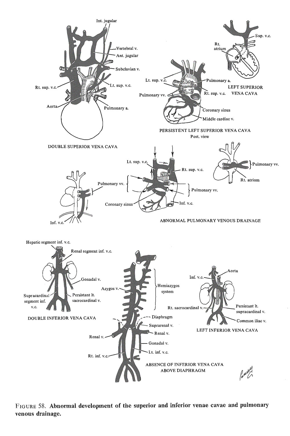 malformations of the  cardiovascular system: image #3