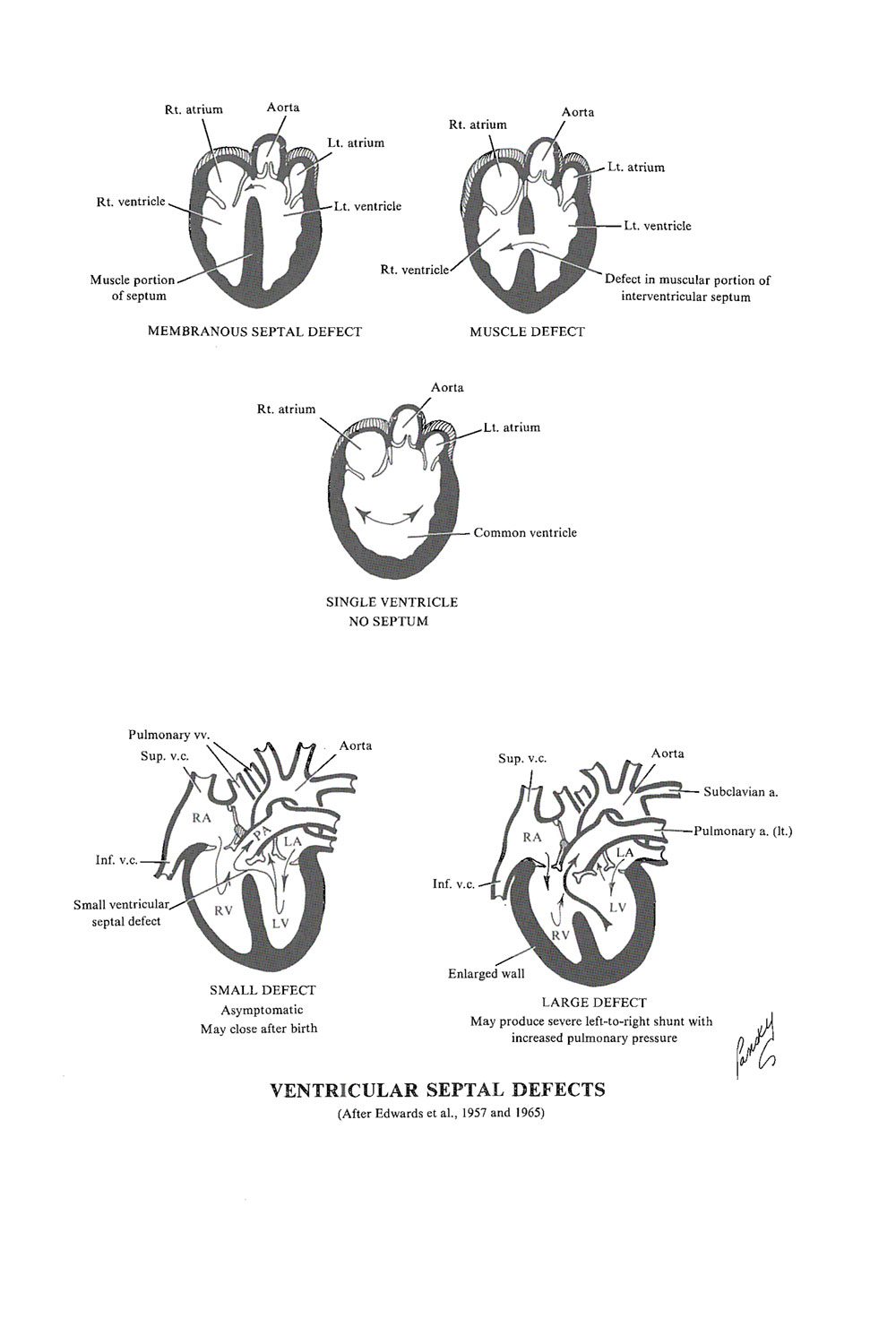 malformations of the heart and  great vessels: image #1