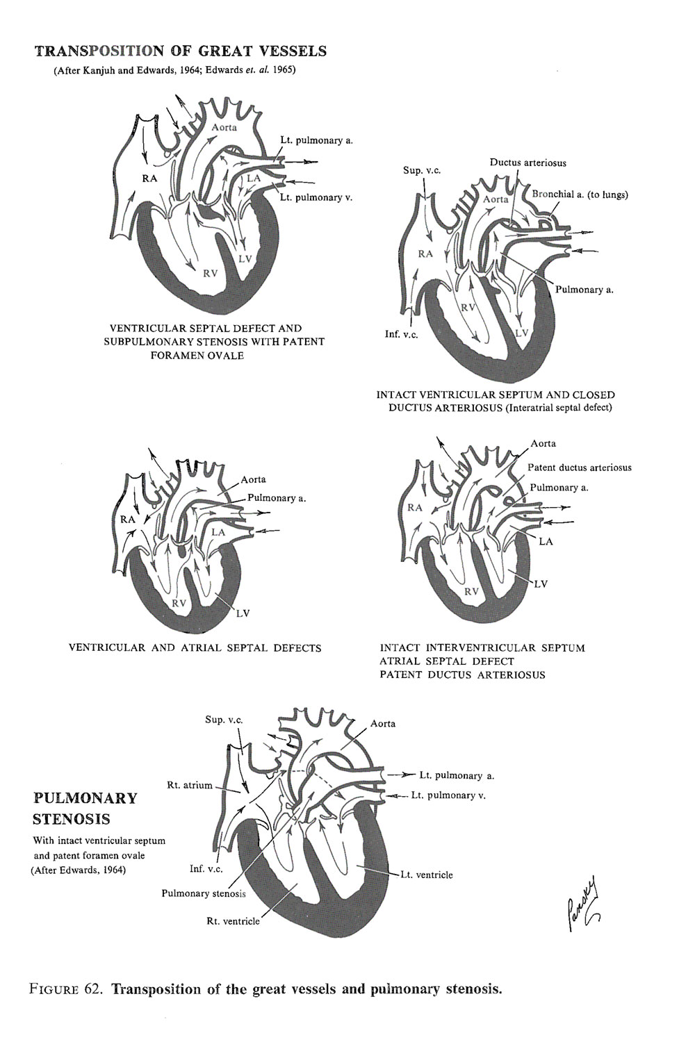 malformations of the heart and  great vessels: image #3