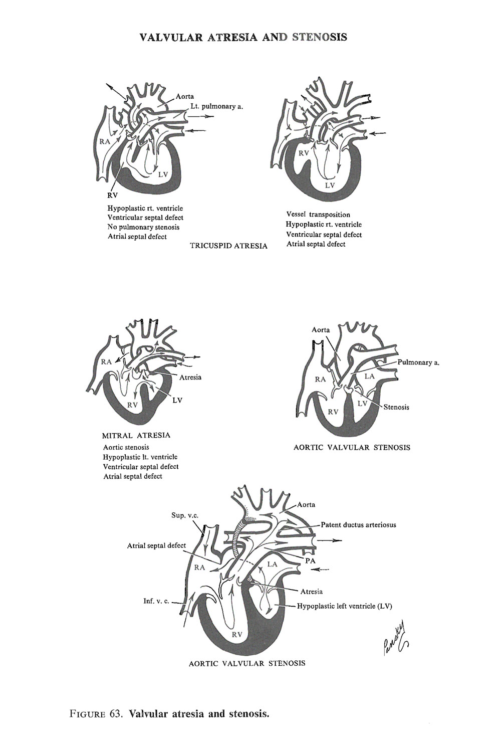 complex cardiac malformations: image #2