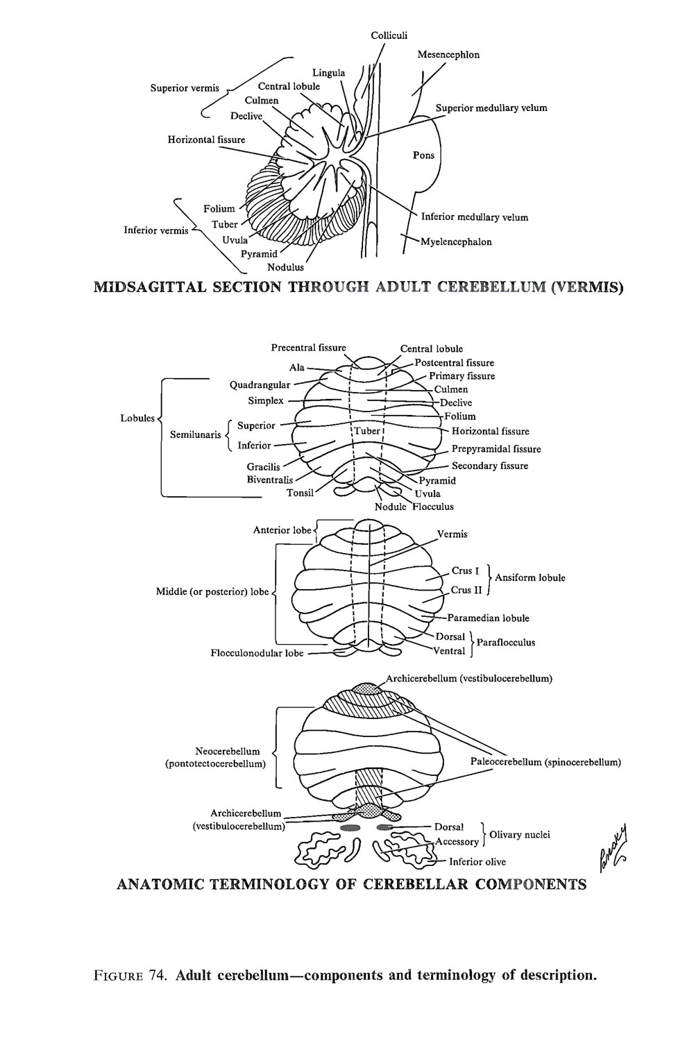 the brainstem: metencephalon  (fourth vesicle) – the cerebellum: image #3