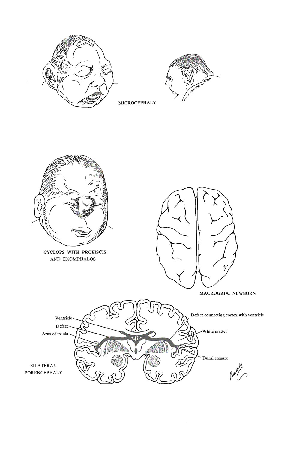 malformations of the brain: image #1