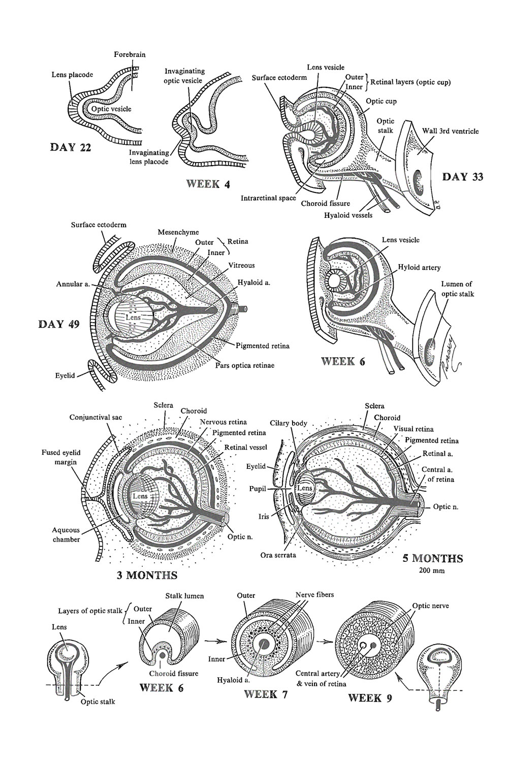 Chapter 168. The Eye: Lens, Choroid, Sclera, Cornea, and Optic Nerve ...