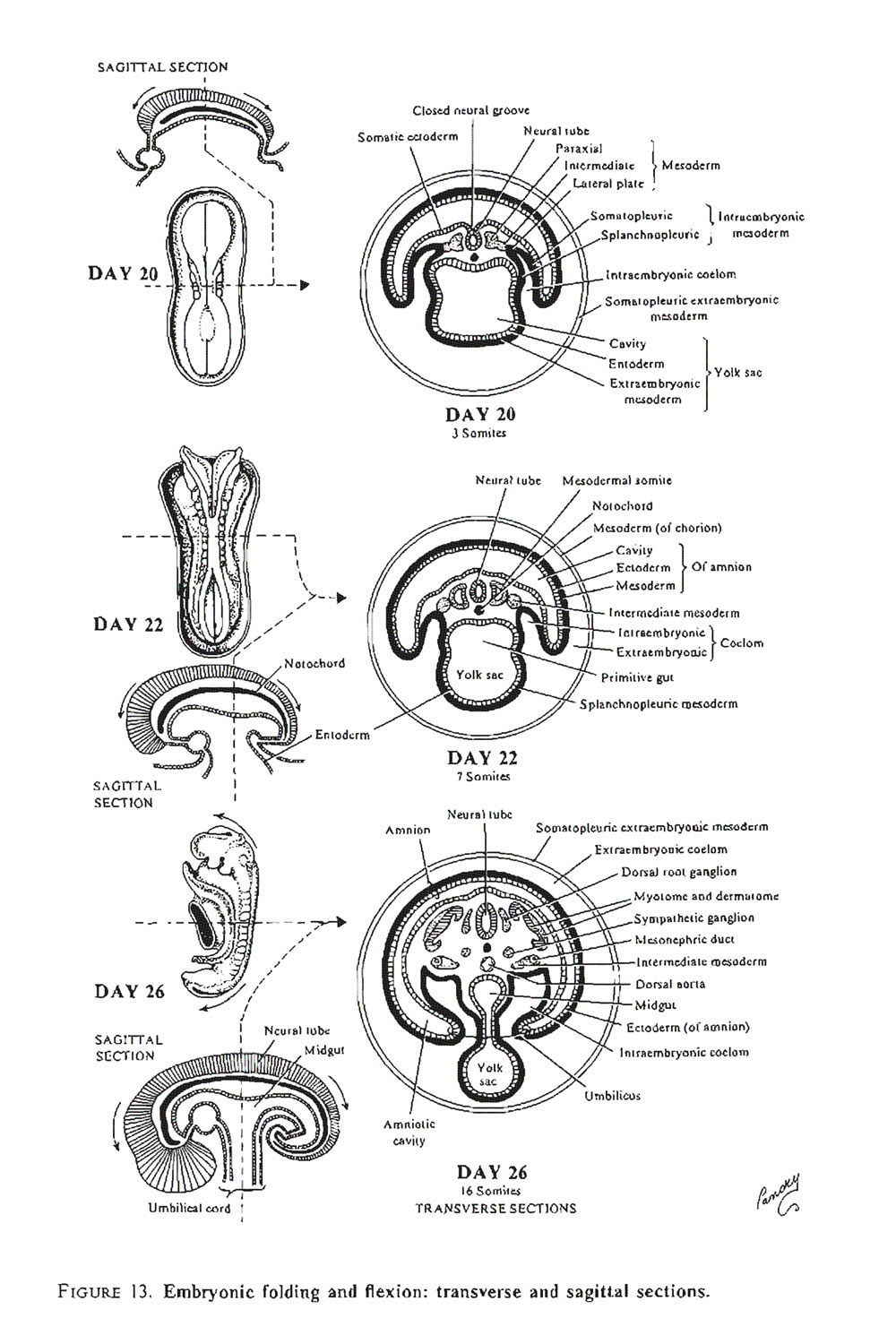 embryonic folding and  flexion of the embryo: image #2