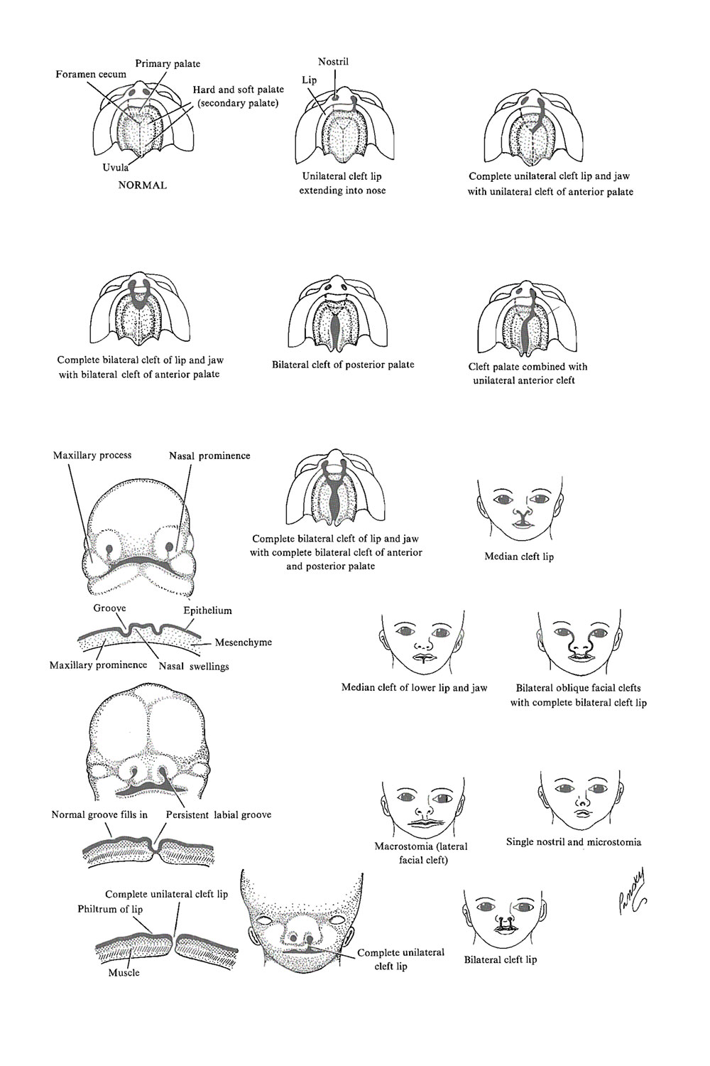 Chapter 56. Congenital Malformations of The Lip and Palate - Review ...