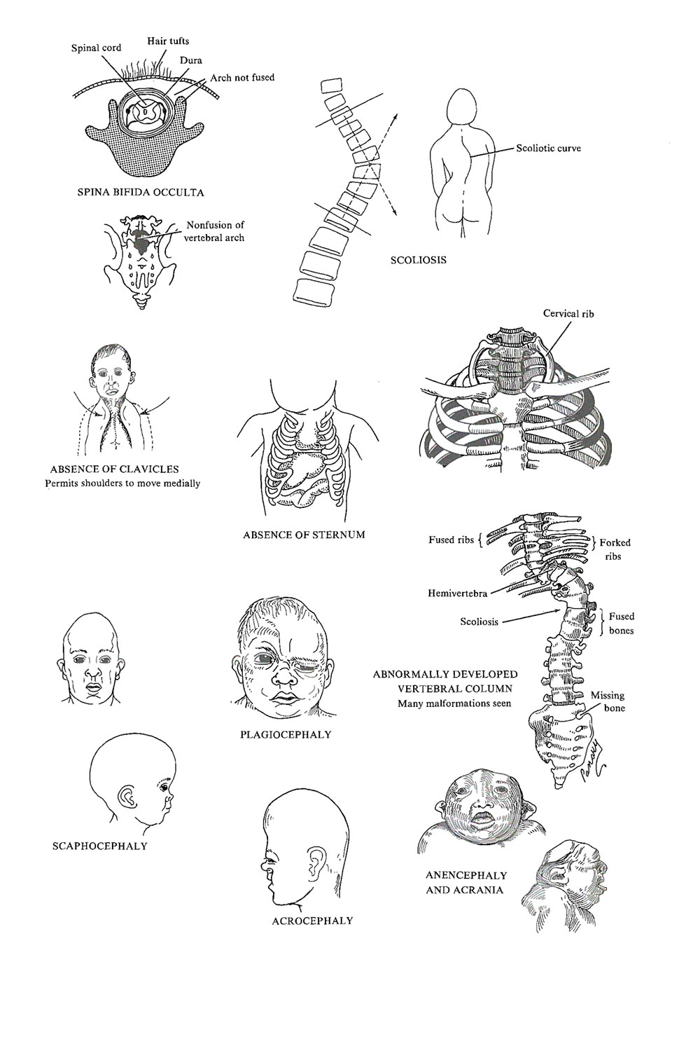 congenital malformations of  the skeletal system: image #1