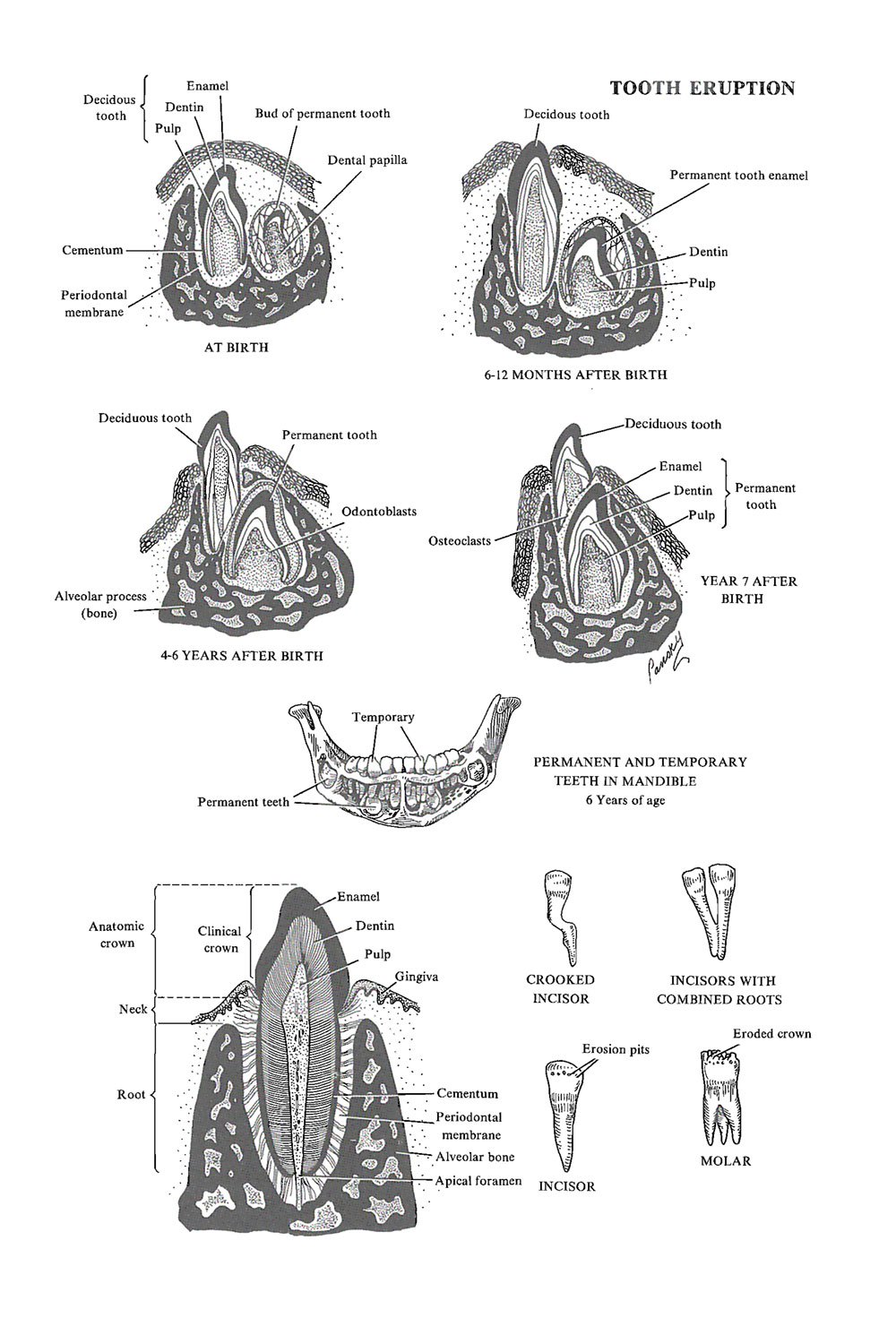 tooth eruption and malformations of the teeth: image #1
