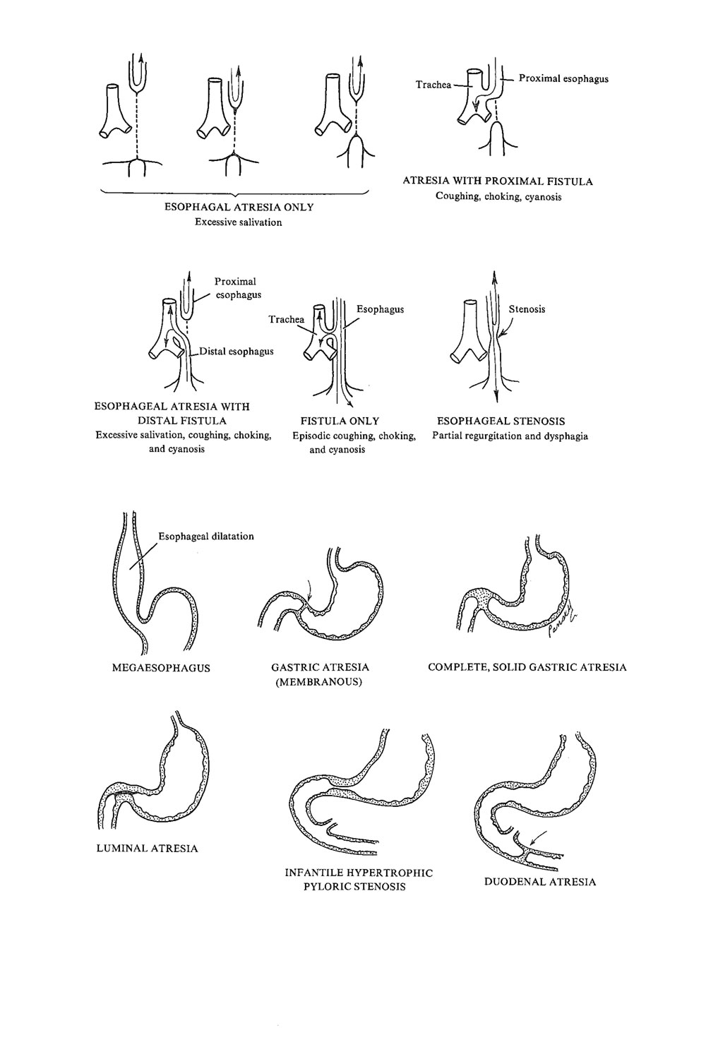 congenital malformations  of the digestive system:  foregut malformations: image #1